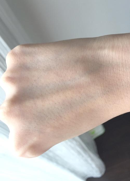 エタラビで脱毛6回目の手の甲